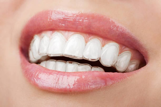 a smile with invisalign as part of our costmetic dentistry services